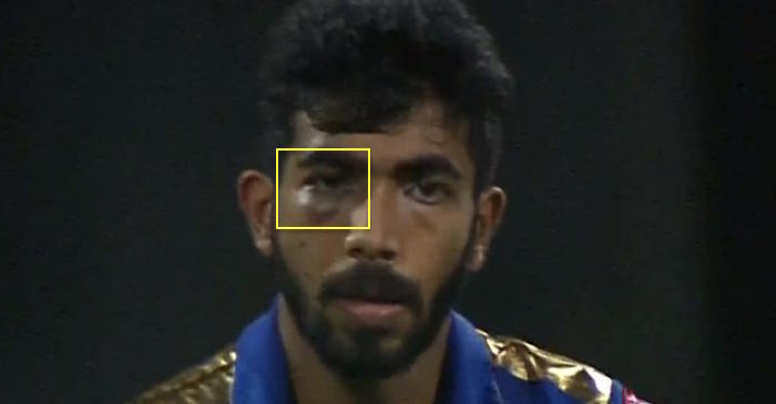 Jasprit Bumrah swollen eye