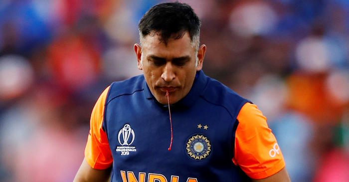 MS Dhoni spitting blood