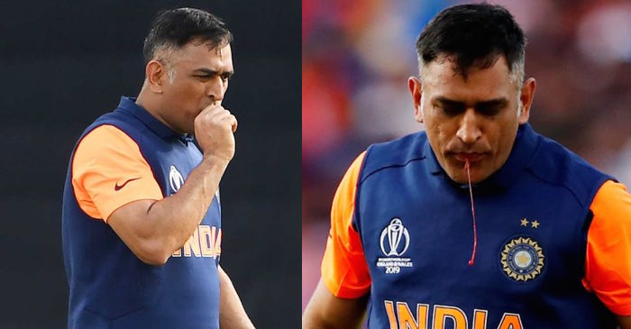 World Cup 2019: Team India official gives an update on MS Dhoni's thumb injury