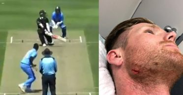James Neesham lampoons himself after hurting his chin against India A